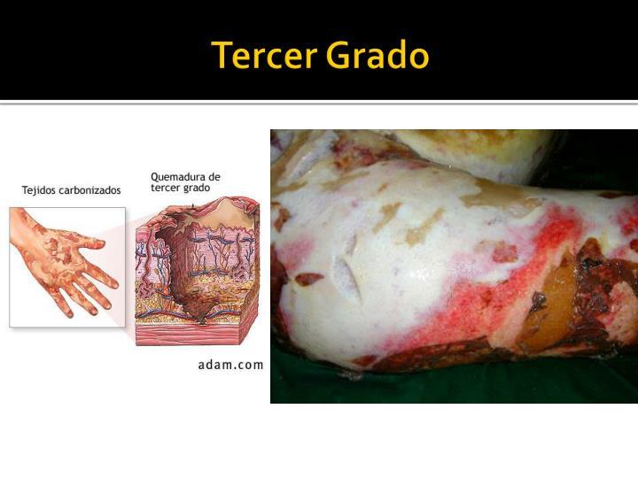 PPT - Quemaduras PowerPoint Presentation - ID:3037960