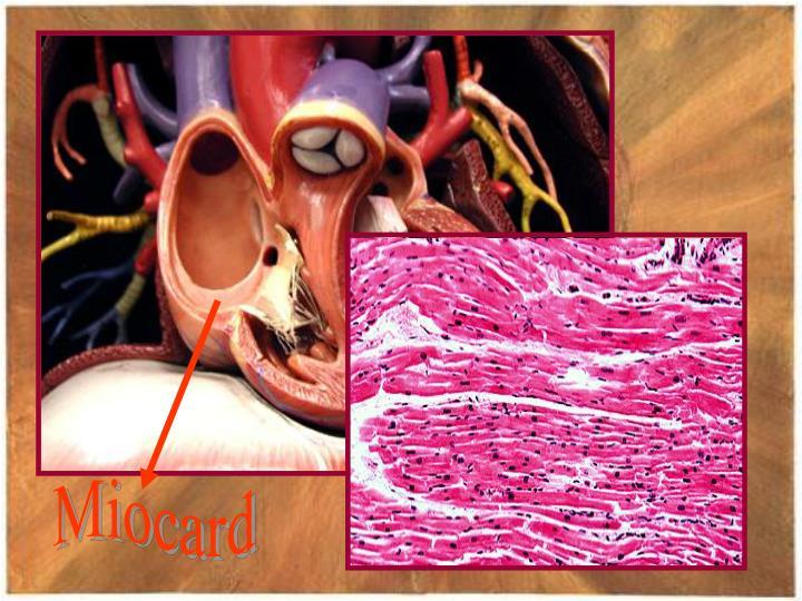 Miocard