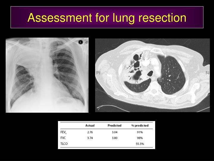 Assessment for lung resection