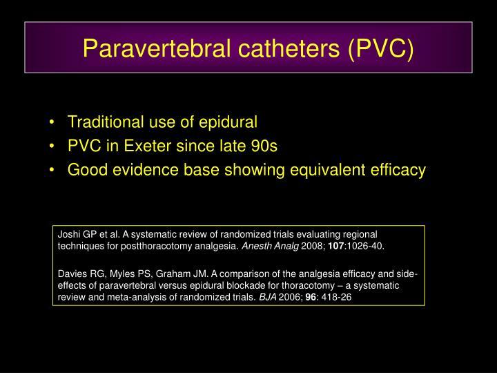 Paravertebral catheters (PVC)