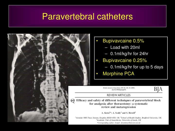 Paravertebral catheters