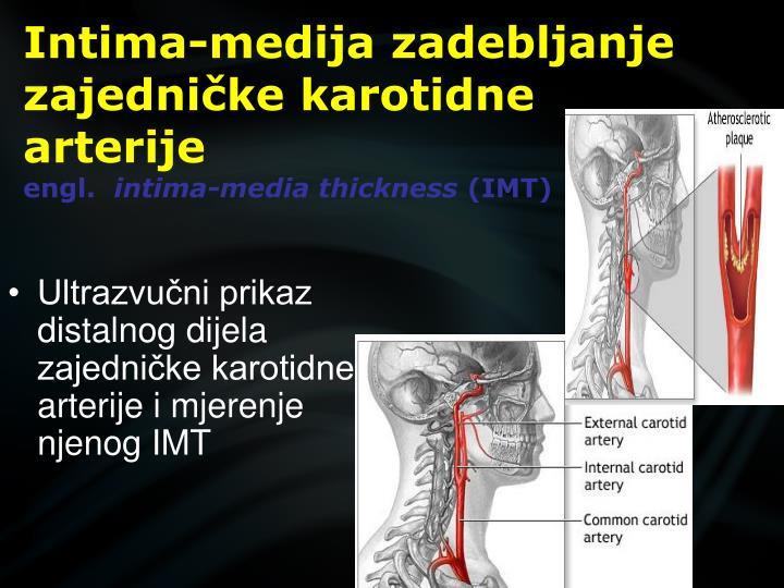 Intima-medija zadebljanje zajedničke karotidne arterije