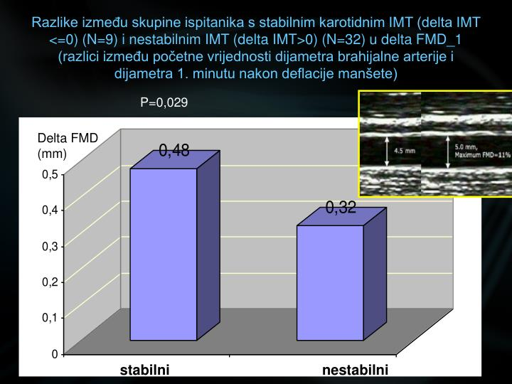 Razlike između skupine ispitanika s stabilnim karotidnim IMT (delta IMT <=0) (N=9) i nestabilnim IMT (delta IMT>0) (N=32) u delta FMD_1 (razlici između početne vrijednosti dijametra brahijalne arterije i dijametra 1. minutu nakon deflacije manšete)
