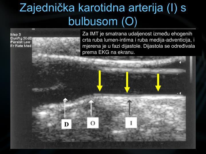 Zajednička karotidna arterija (I) s bulbusom (O)