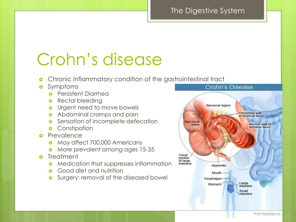PPT - Digestive System PowerPoint Presentation - ID:3054055