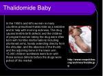 thalidomide baby