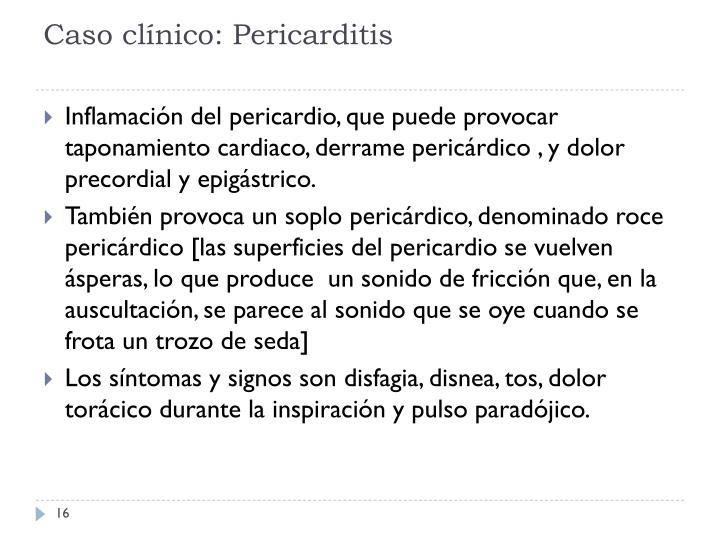 Caso clínico: Pericarditis