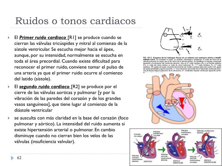 Ruidos o tonos cardiacos