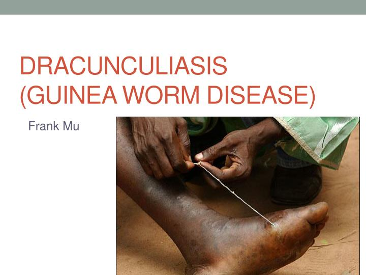 a study on the guinea worm disease The global guinea worm eradication program has already prevented some 80 million cases of guinea worm disease while educating and empowering people in thousands of communities and by working closely with local and national health providers, the campaign has helped to strengthen the healthcare infrastructure in 21 african and asian countries.
