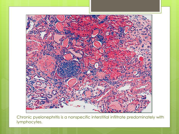 Chronic pyelonephritis is a nonspecific interstitial infiltrate predominately with lymphocytes.