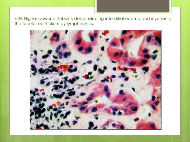 AIN. Higher power of tubulitis demonstrating interstitial edema and invasion of the tubular epithelium by lymphocytes.
