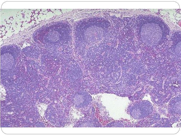 Lymphoid pathology