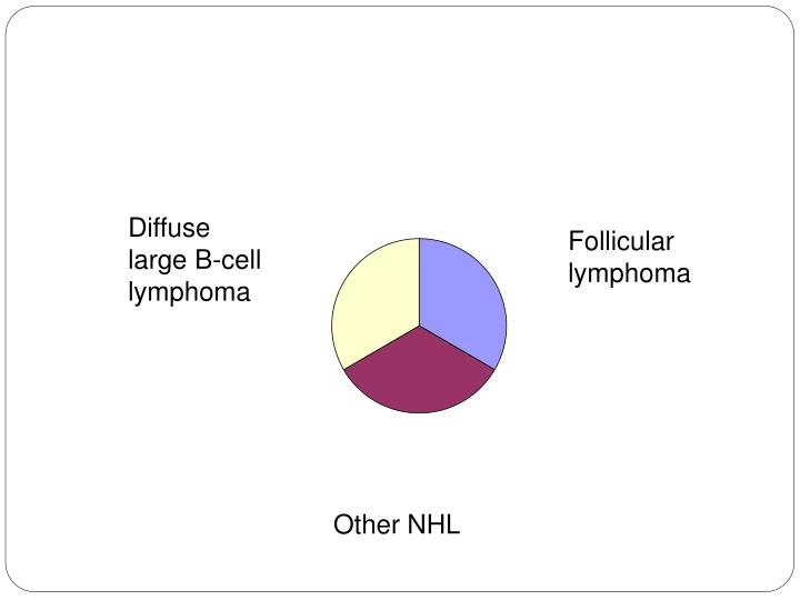 Diffuse large B-cell lymphoma