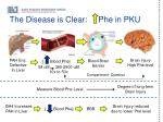 the disease is clear phe in pku