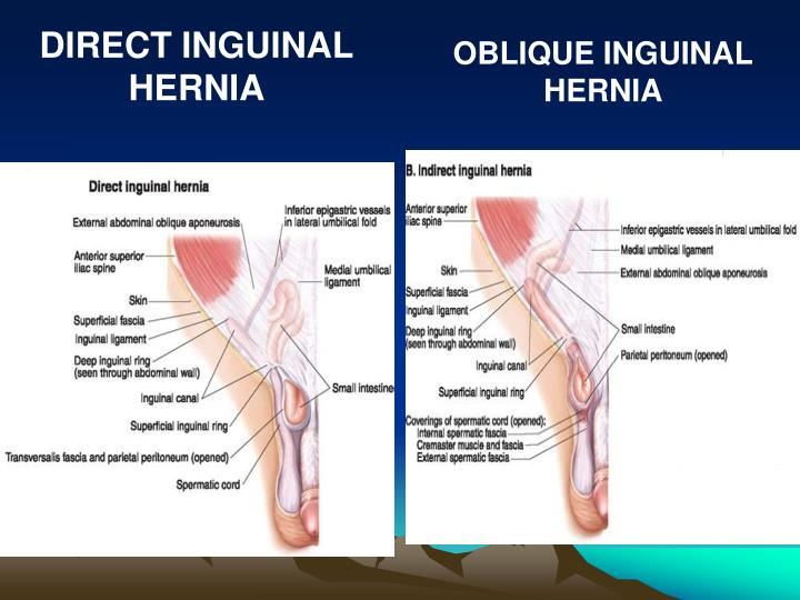 DIRECT INGUINAL HERNIA