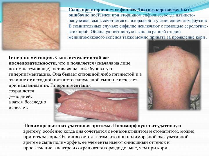 Сыпь при вторичном сифилисе. Диагноз кори может быть ошибоч