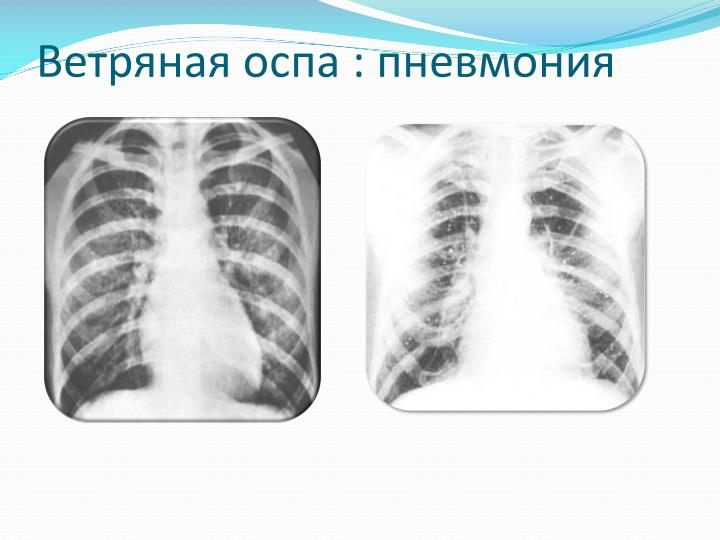 Ветряная оспа : пневмония