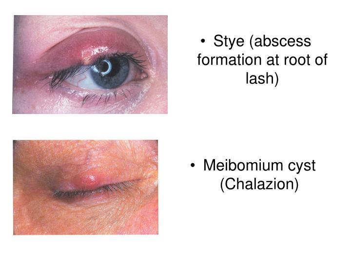 Stye (abscess formation at root of lash)
