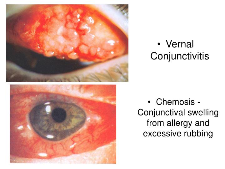 Chemosis - Conjunctival swelling from allergy and excessive rubbing