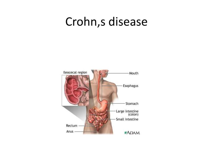 crohns disease as a global issue and the impact of science on the disease Crohn's disease has a global impact on patients pubmed web of science adalimumab-treated patients with early crohn's disease j crohns colitis.