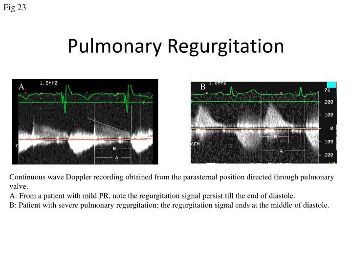 Pulmonary regurgitation