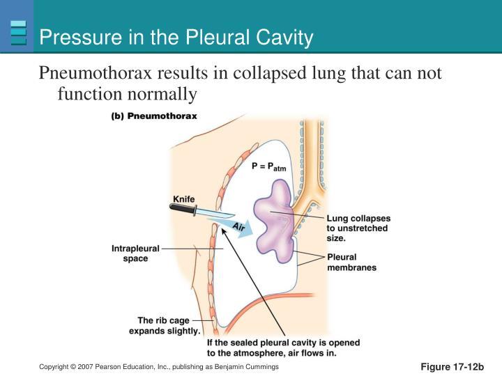 Pressure in the Pleural Cavity