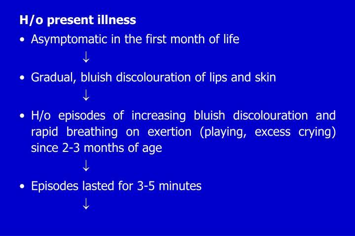 H/o present illness