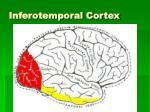 inferotemporal cortex