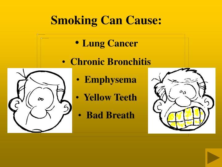 Smoking Can Cause: