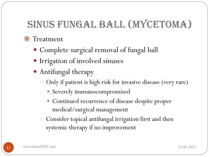 Sinus Fungal Ball (Mycetoma)