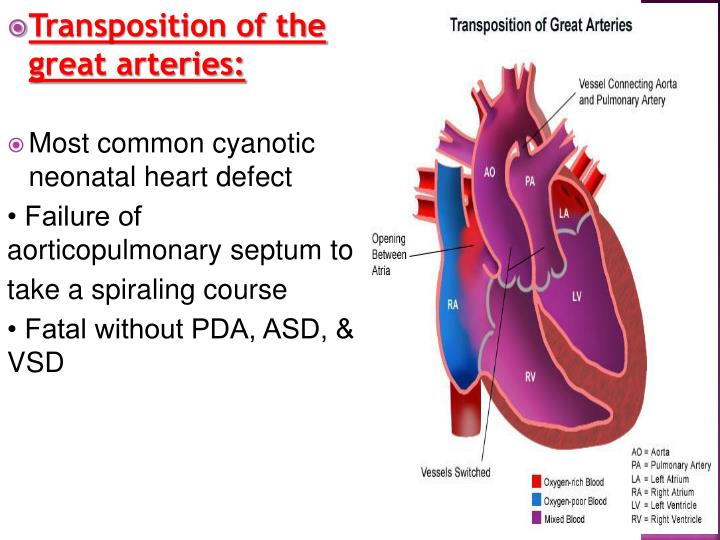 Transposition of the great arteries: