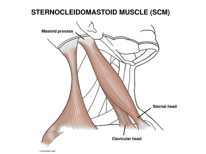 STERNOCLEIDOMASTOID MUSCLE (SCM)