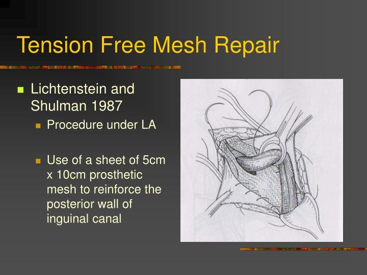 Tension Free Mesh Repair