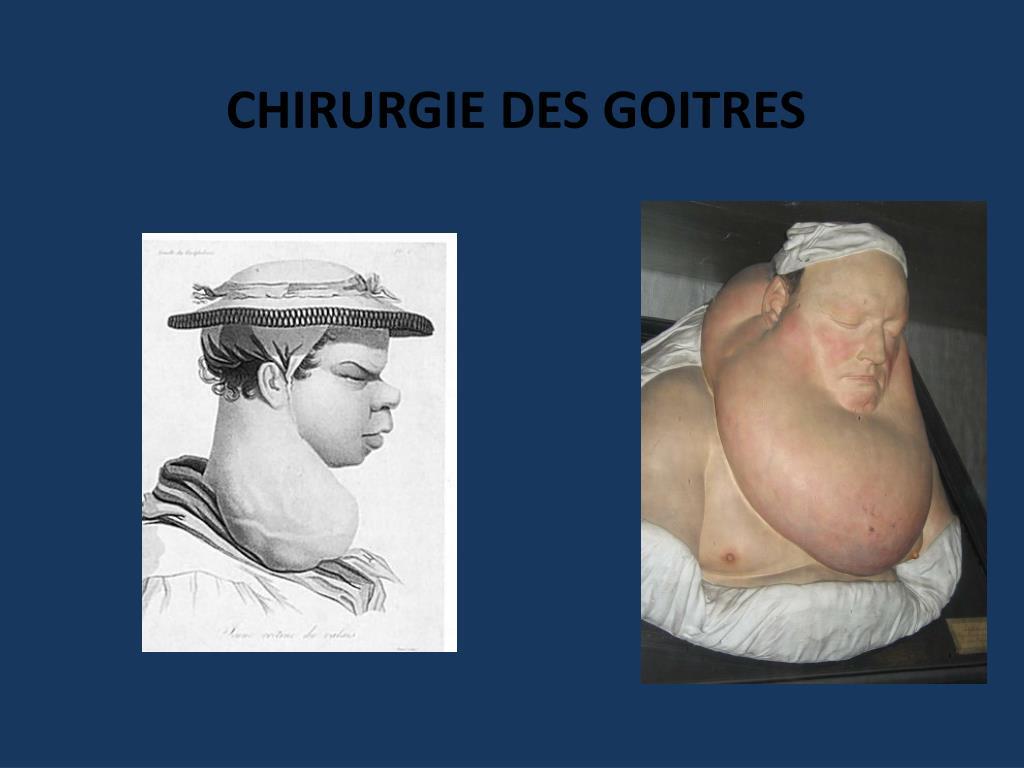 PPT - PLACE DE LA CHIRUGIE EN Thérapeutique thyroïdienne PowerPoint ...