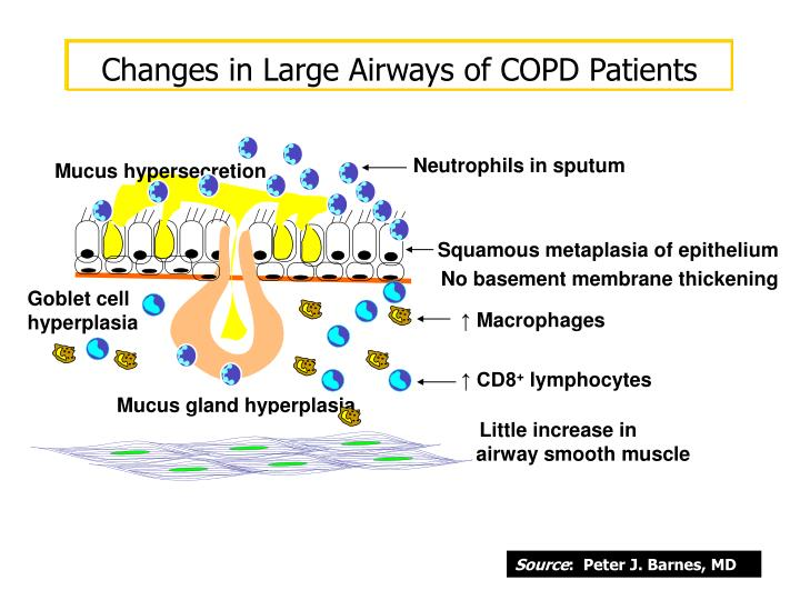 Changes in Large Airways of COPD Patients