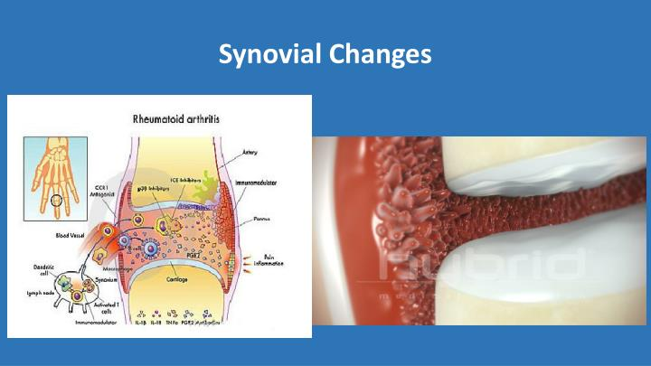 Synovial Changes