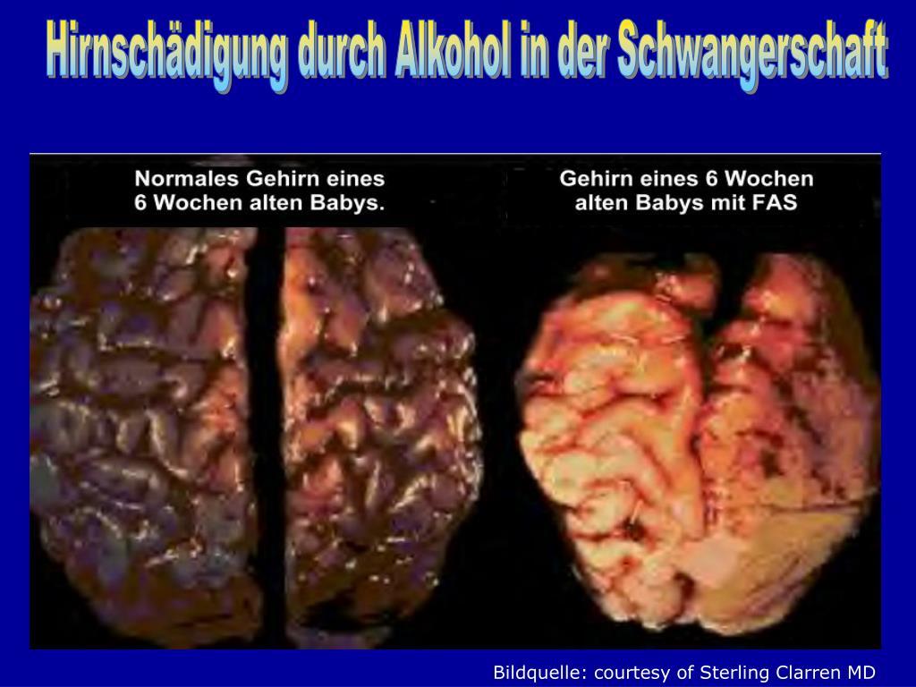 Hirnschädigung Durch Alkohol