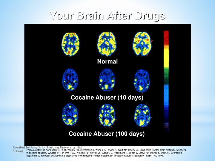 Your Brain After Drugs