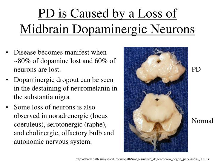 Pd is caused by a loss of midbrain dopaminergic neurons
