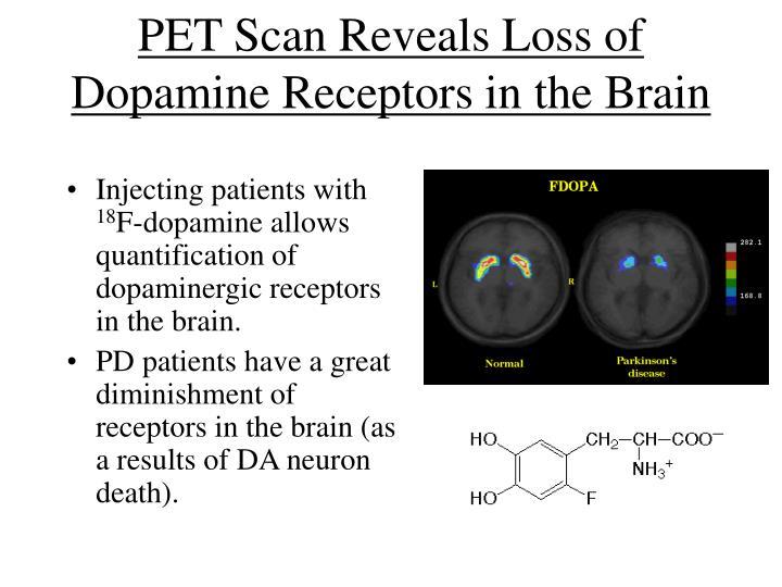 PET Scan Reveals Loss of Dopamine Receptors in the Brain