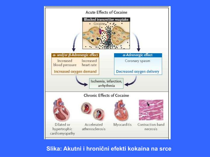 Slika: Akutni i hronični efekti kokaina na srce