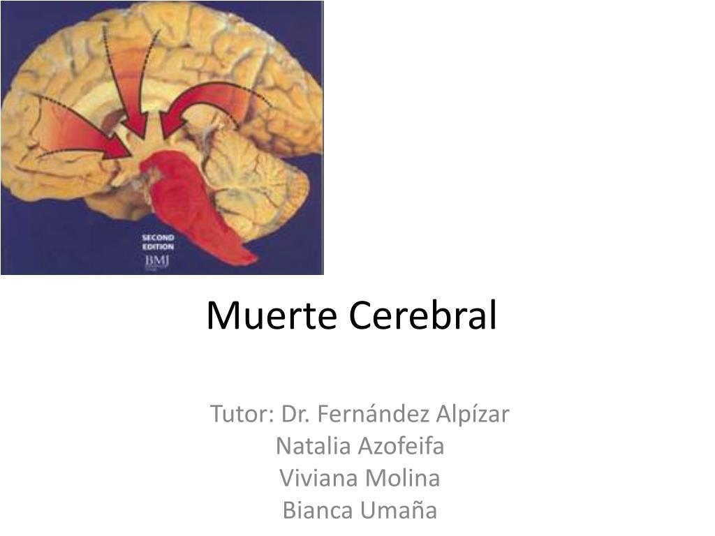 PPT - Muerte Cerebral PowerPoint Presentation - ID:3164284