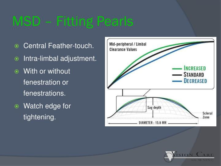MSD – Fitting Pearls