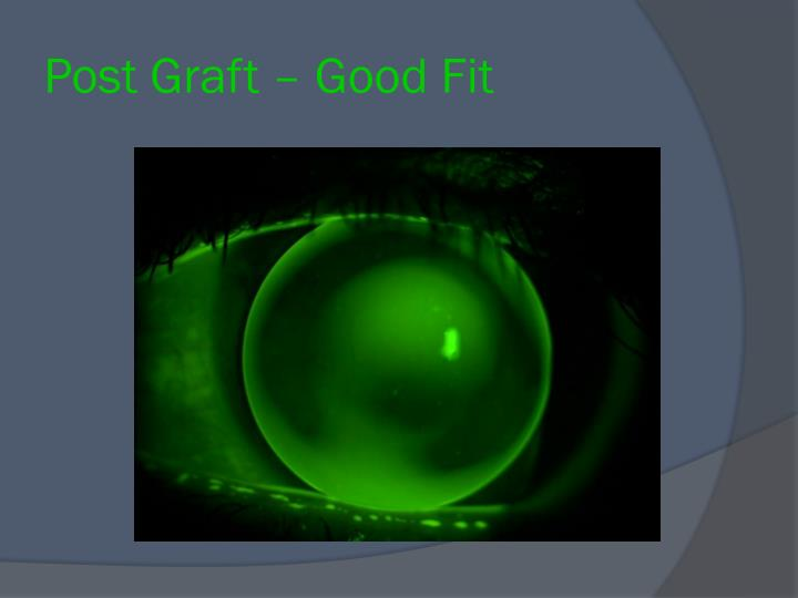 Post Graft – Good Fit