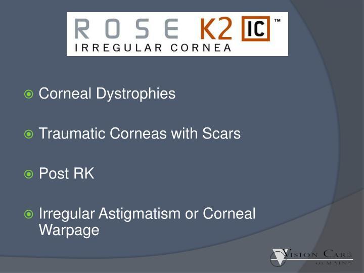 Corneal Dystrophies