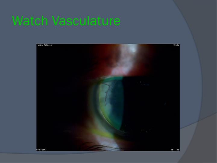 Watch Vasculature
