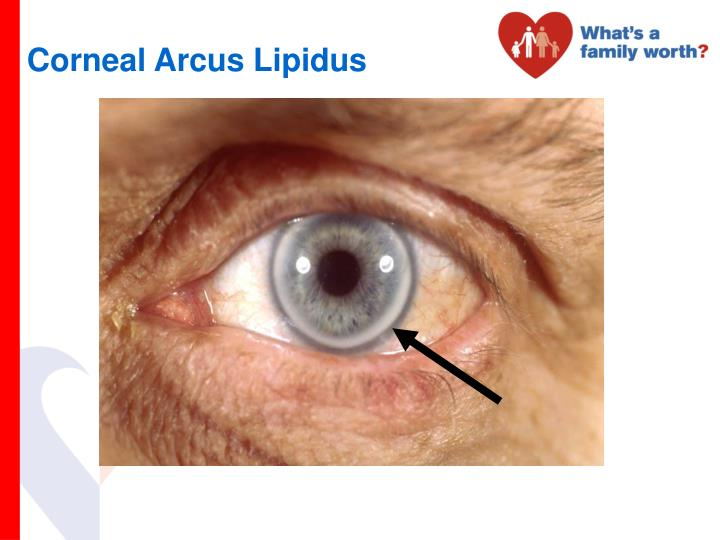 Corneal Arcus Lipidus