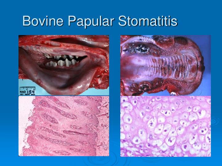 Bovine Papular Stomatitis