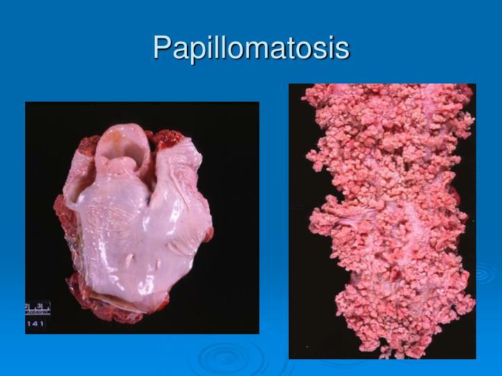Papillomatosis