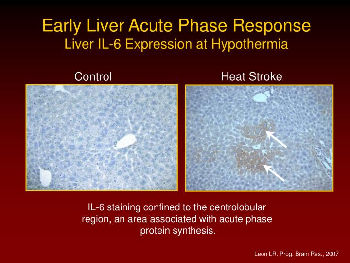 Early Liver Acute Phase Response